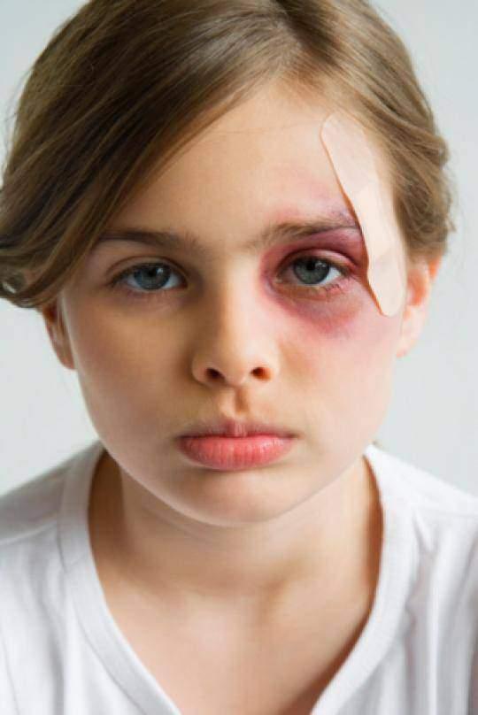 Фото девушек с синяком под глазом